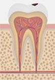 Классическая технология имплантации зубов