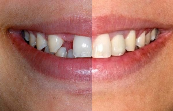 Фото до и после протезирования зубов в клинике ЦДИ