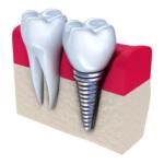 Одноэтапная технология имплантации зубов